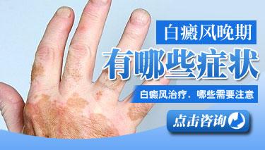 手部患白癜风治疗怎么办