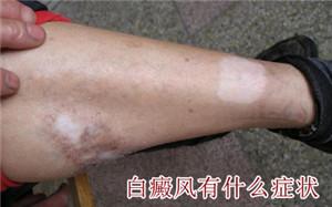 男性腿上有白癜风什么症状